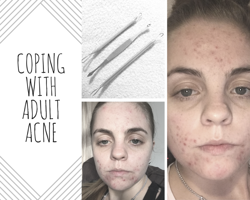 Coping with adult acne