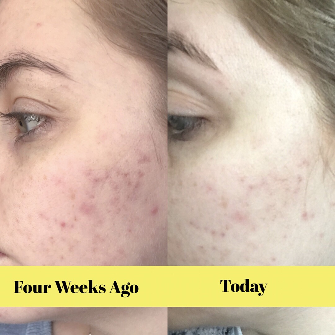 Update on improving my acne scarring