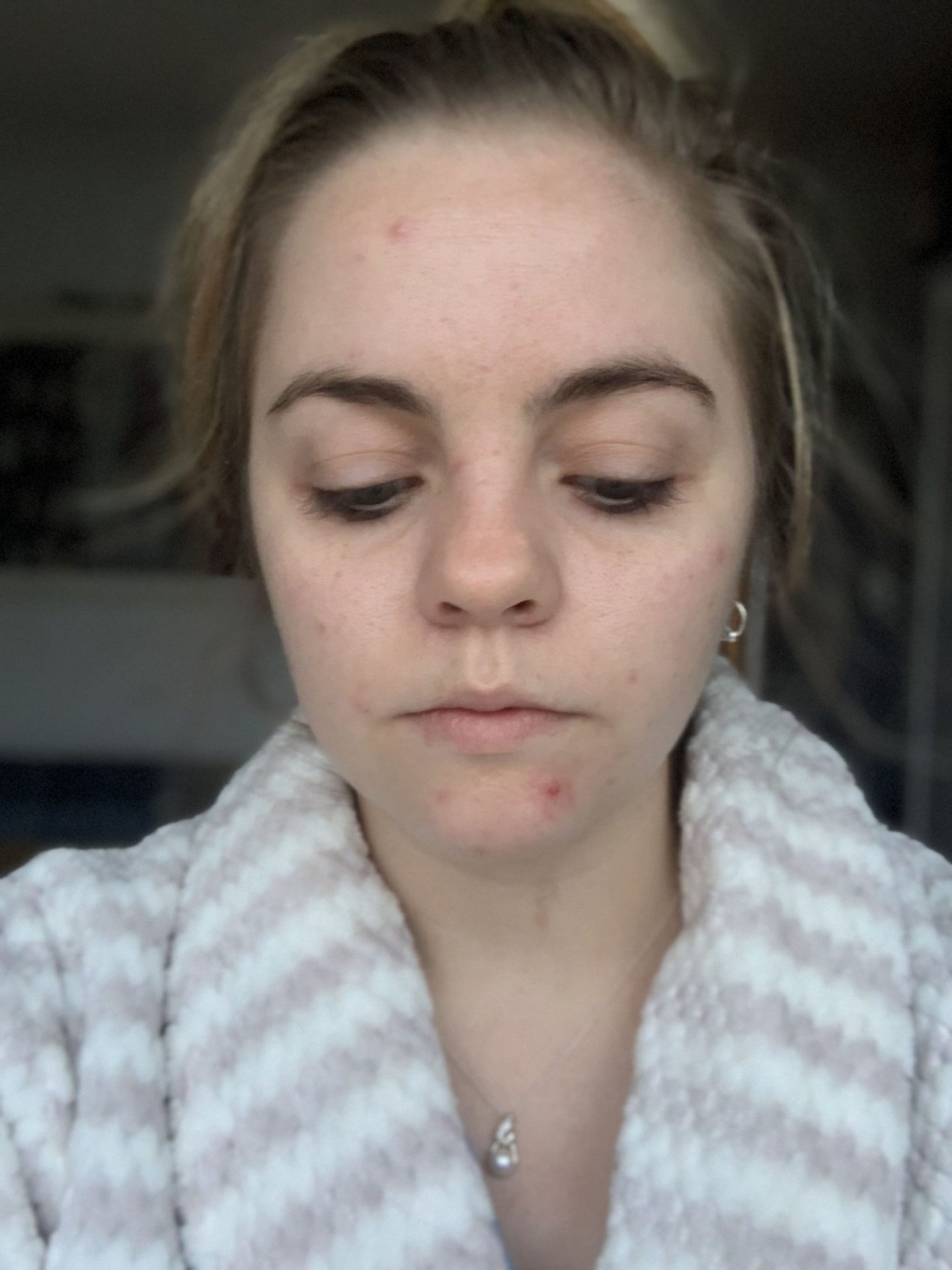 Coping with adult acne – one year on